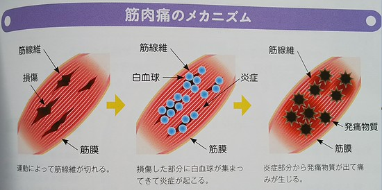筋肉痛のメカニズム